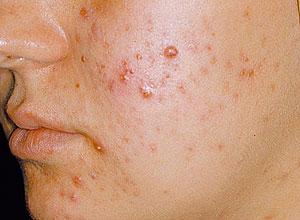 limpeza de pele - acne