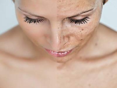 limpeza de pele - manchas