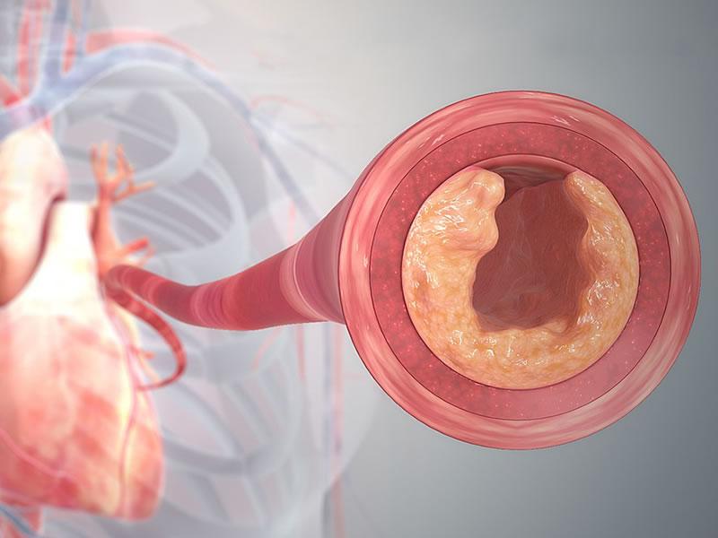 Arteria entupida aterosclerose